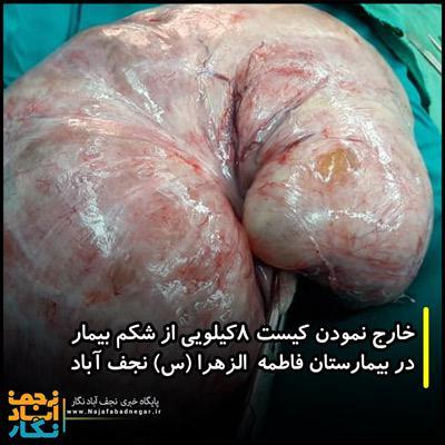کیست ۸ کیلویی از شکم بیمار در نجف آباد خارج شد